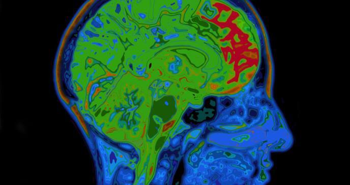 PDL: el fenómeno neurológico que describe el olvido de palabras