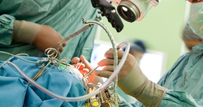 Primera cirugía láser para epilepsia y tumor cerebral