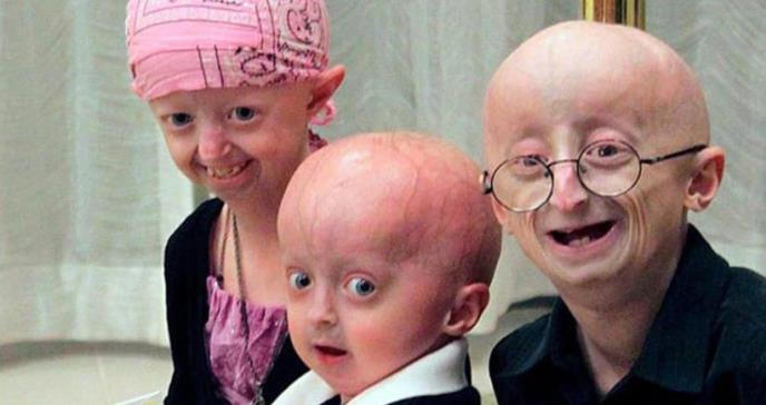 Progeria: el drama de los niños con envejecimiento rápido que viven en promedio 14 años y medio
