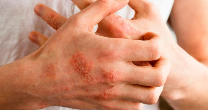 New Data at EADV 2020 Confirm Taltz® (ixekizumab) Demonstrates Sustained Long-Term Efficacy in Patients with Psoriasis and Psoriatic Arthritis