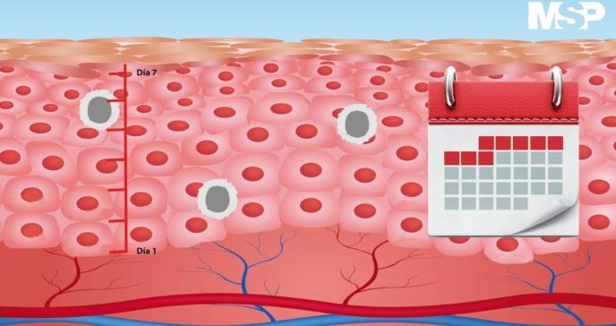 Psoriasis: una enfermedad que va más allá de la piel