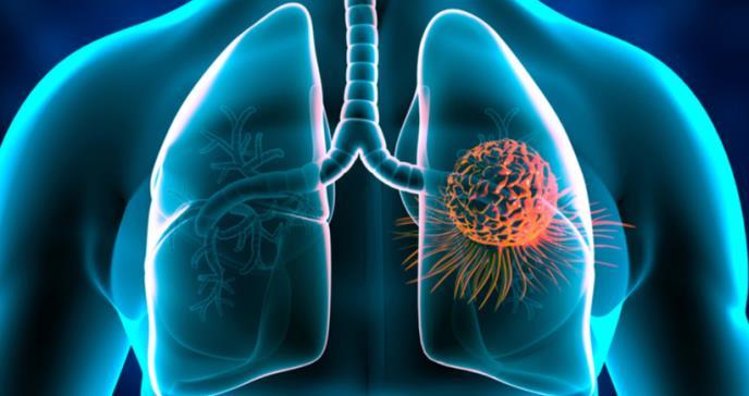 El vínculo desatendido entre tos y cáncer de pulmón