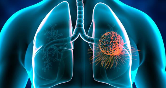 Avances médicos: Terapias biológicas dirigidas al cáncer del pulmón