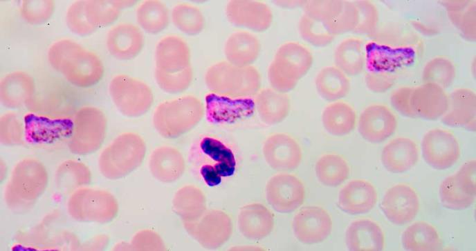 Realizarán el primer ensayo de anticuerpos monoclonales para prevenir la malaria