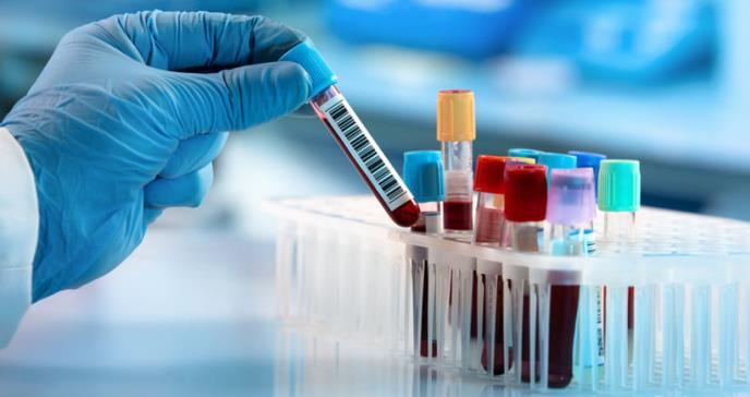 Nuevo test de sangre podría detectar el cáncer de próstata con mayor precisión