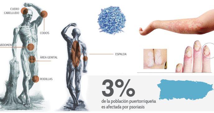 Enfermedad coronaria en pacientes con psoriasis: un estudio en puertorriqueños
