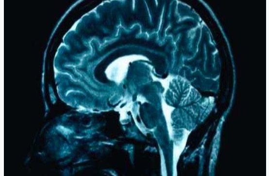 Identifican grupo de pacientes diferenciado dentro de la esquizofrenia