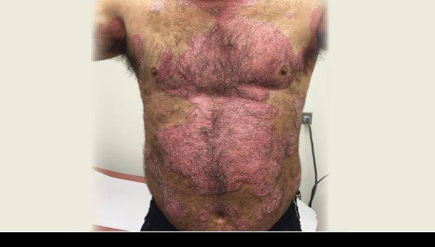 Psoriasis, más allá de la piel del paciente