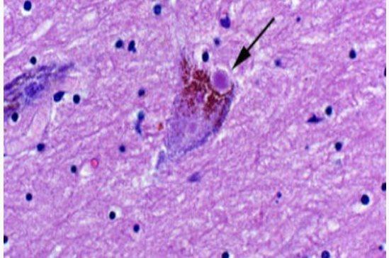 El origen del párkinson podría estar localizado en el intestino