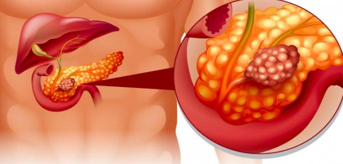 Estudio revela que fármaco antiinflamatorio puede combatir el cáncer de páncreas