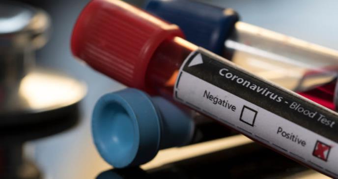 Se añaden tres muertes a causa del COVID-19