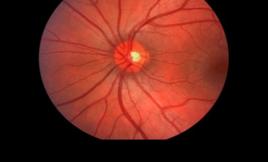 Científicos logran restaurar la visión de modelos con lesión del nervio óptico con coctel farmacológico