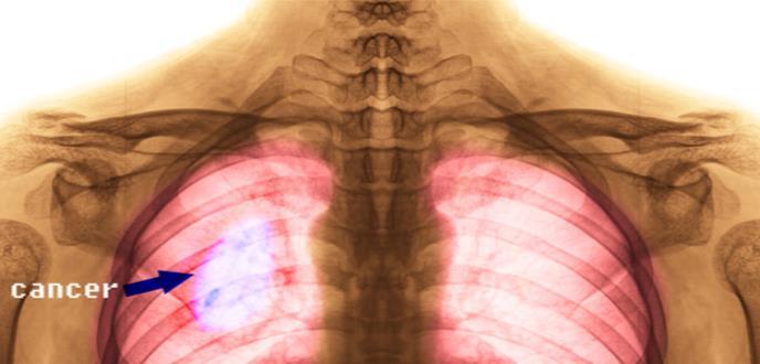 Retos del tratamiento del cáncer de pulmón metastásico