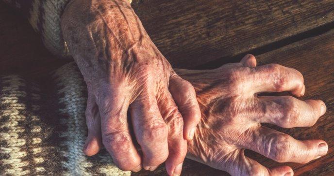 Cinco opciones de tratamiento para la artritis reumatoide