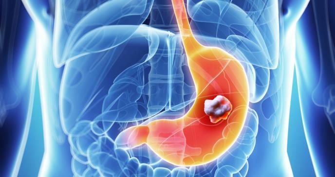 Alta la mortalidad del cáncer de estómago en Puerto Rico