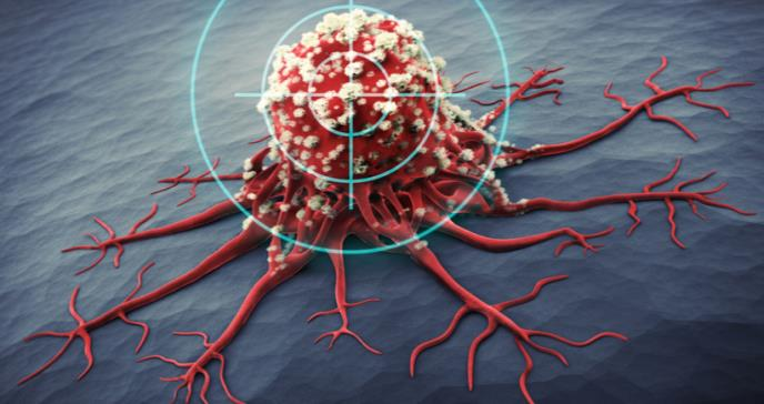 Avanzan los tratamientos contra el Mieloma Múltiple Indolente