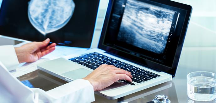 Desarrollan un sistema de ayuda al diagnóstico del cáncer de mama basado en inteligencia artificial