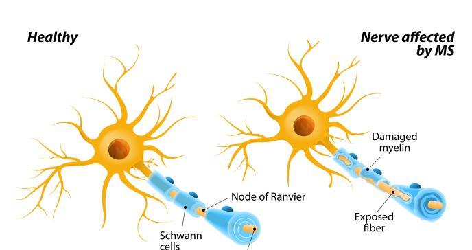 Niveles de vitamina D en sangre ayudan a predecir el riesgo de esclerosis múltiple