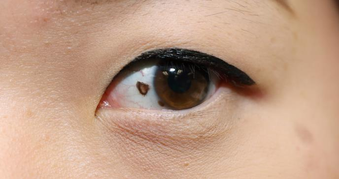 El extraño tipo de cáncer de ojo que tiene desconcertados a los expertos