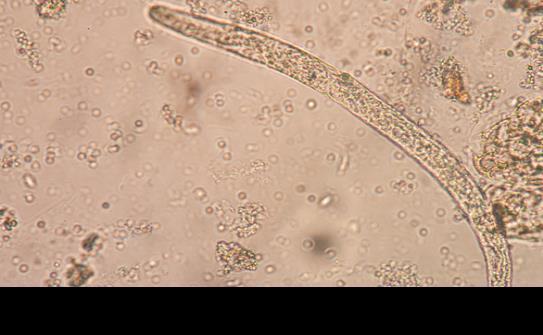 Molécula parasitaria podría ayudar con la enfermedad de Crohn