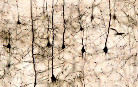 La hiperactividad de la corteza motora del cerebro, detrás del síndrome de piernas inquietas
