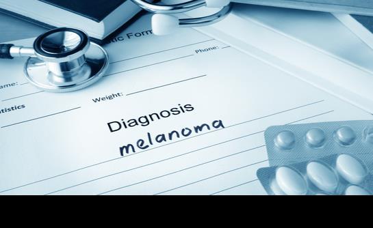 En aumento la tasa de melanoma