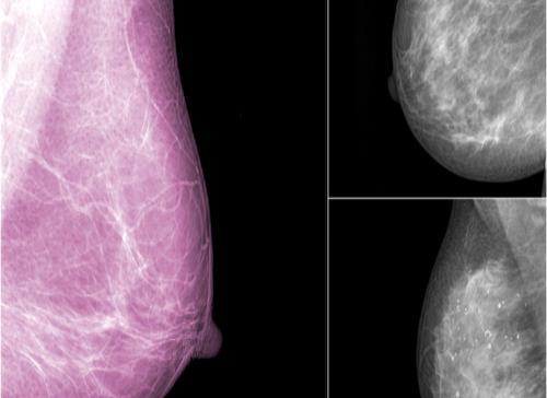 Hallan 10 combinaciones de fármacos contra el cáncer de mama nunca antes probadas