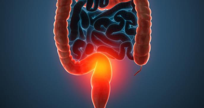 Aceite para freír empeoraría inflamación intestinal y el cáncer de colon