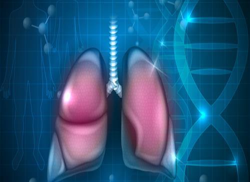Logran identificar gen que condiciona la respuesta a la inmunoterapia en cáncer pulmonar