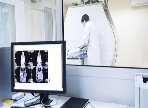Imágenes de resonancia magnética pueden detectar VIH en el cerebro