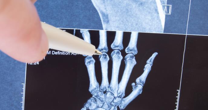 Aprobada cuarta indicación de XELJANZ® para el tratamiento de la artritis idiopática juvenil