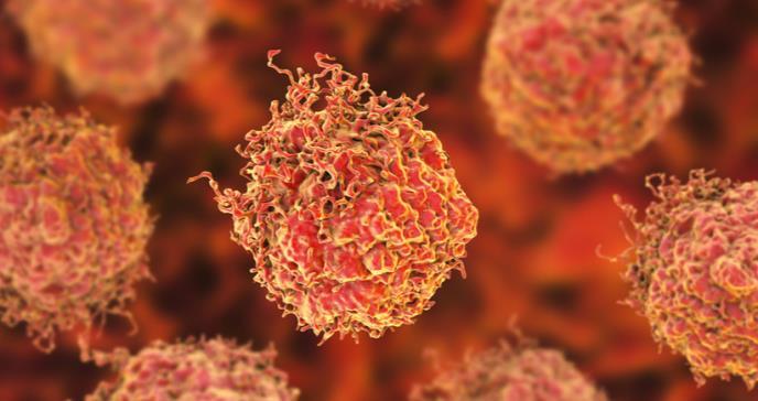 Descubren gen que podría mejorar la detección del cáncer de próstata.