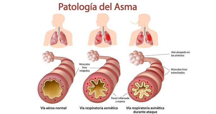 Encuesta señala que pacientes con asma descontrolada piensan equivocadamente que su condición está bajo control