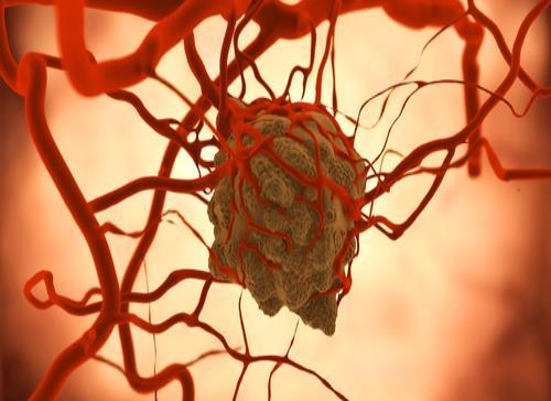 El cáncer de páncreas metastásico se reprograma para la malignidad