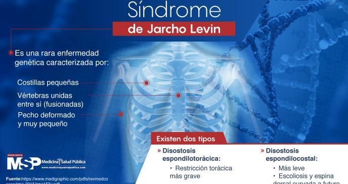 Síndrome de Jarcho Levin