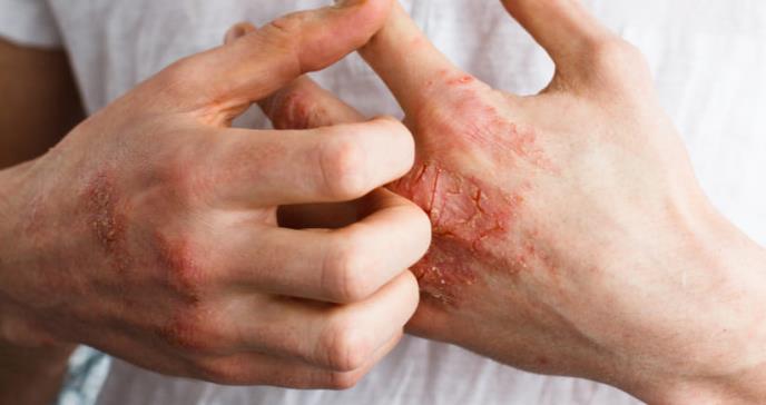Si tienes psoriasis, sufres más riesgo de estas tres enfermedades