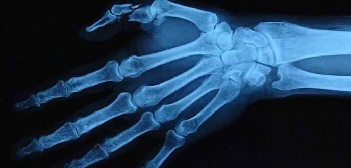 Software reconstruye fracturas óseas en 3D para facilitar las cirugías