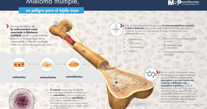 Mieloma múltiple, un peligro para el tejido