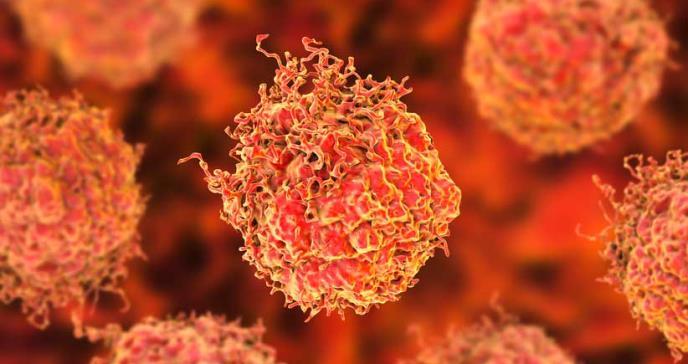 Terapia de protones reduciría el riesgo de efectos secundarios en el cáncer