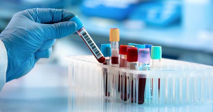 Por qué EE. UU. ha hecho pocas pruebas para detectar el coronavirus