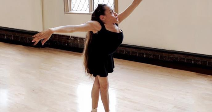 La impresionante historia de la bailarina que padece el síndrome Jarcho Levin