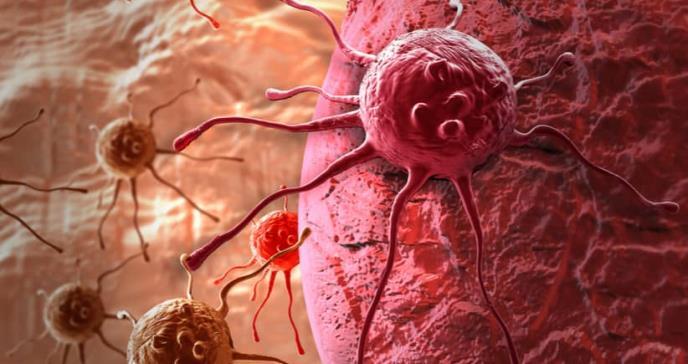 Los 4 tipos de cáncer cuya principal causa es la obesidad