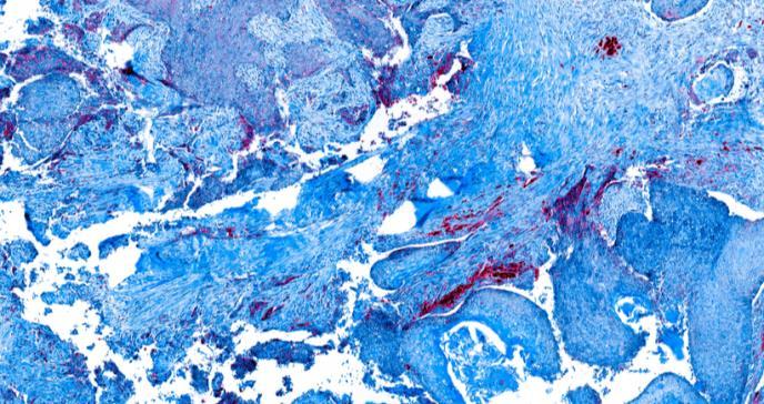 Trasplante autólogo de células hematopoyéticas en pacientes con mieloma múltiple