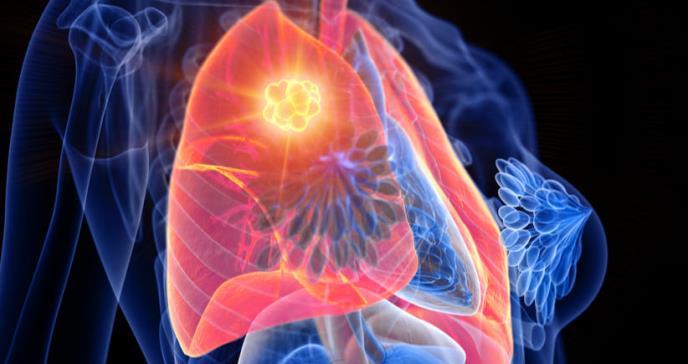 Aprueban primer tratamiento para el cáncer de pulmón más agresivo
