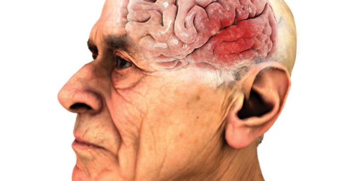 Tratamientos quirúrgicos y no quirúrgicos en el manejo de la enfermedad de Parkinson