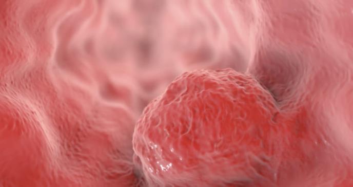Tratamiento se muestra prometedor contra los tumores sólidos