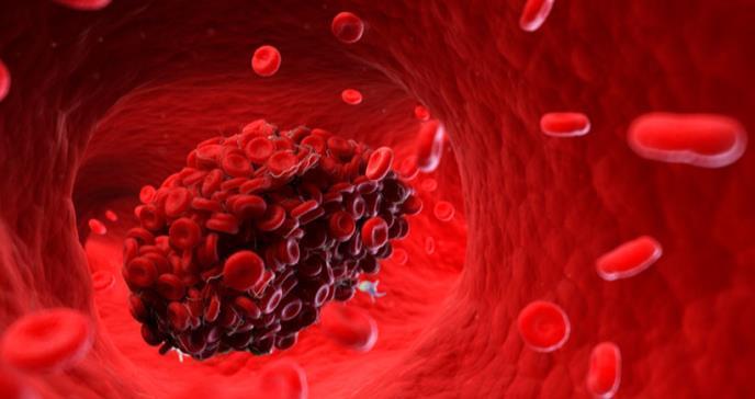 Importancia de la medicina interna en la prevención del tromboembolismo venoso