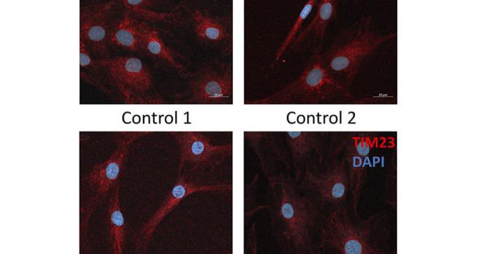Una anomalía genética, clave para el desarrollo de nuevas terapias contra la diabetes