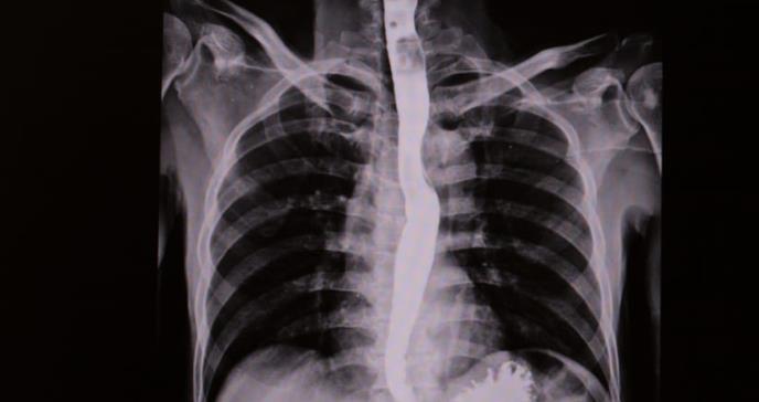 Diseñan eficaz prueba para detectar tempranamente el cáncer de esófago