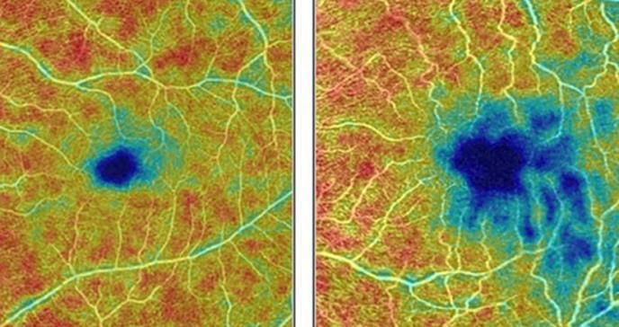 Una exploración del ojo puede detectar precozmente el alzhéimer
